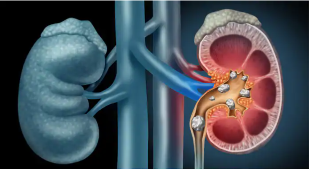 5 Ways How to Get Rid Of Kidney Stones At Home